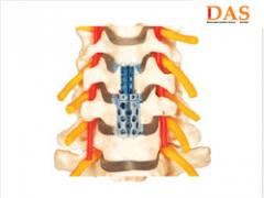 Distractable Anterior Spacer - Cervical