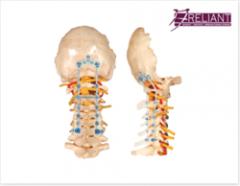 Occipito - Cervico - Thoracic Spinal Fixation