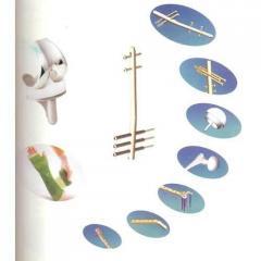 Medical Orthopedic Implants