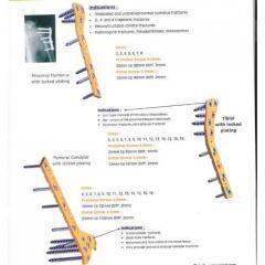 Interlocking Nails - S.s & Titanium