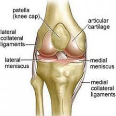 Arthroff Joint Arthritis