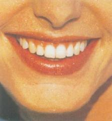 Chitin Dental Care Grade