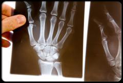 Rheumatoid arthritis treatment drug ARAVA