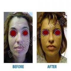 Oxygen facial treatment in delhi