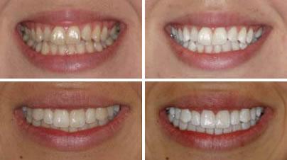 Order Dental bleaching