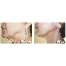 Skin Tightening Photo Facial