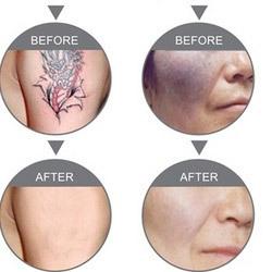 Order Tatto & Birth Marks Removal