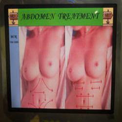 Order Breast Lifting