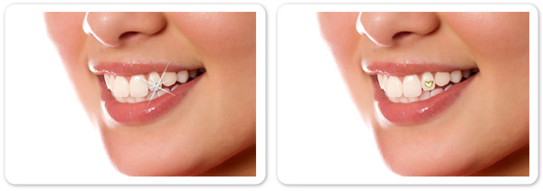 Order Dental Jewels