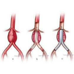 Order Vascular surgery