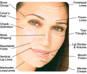 Order Fillers Treatment