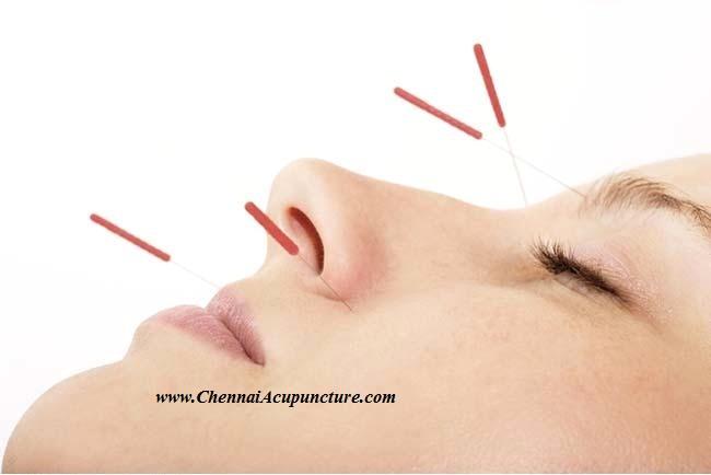 Order Acupuncture Treatment -Chennai