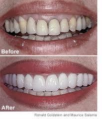 Order Fixed teeth(bridges & crowns)