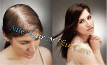 Order Hair Bonding in Bangalore