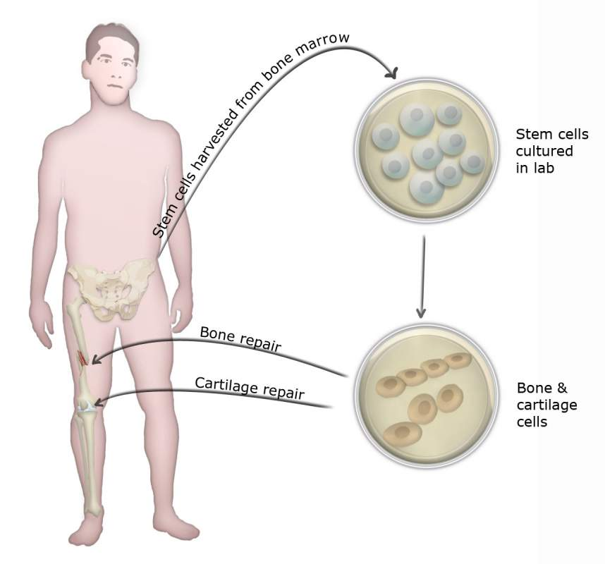 Order Stem cell Therapy