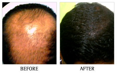 Order Hair Loss Clinic in Bangalore