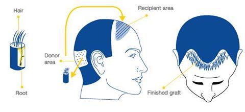Order Hair Transplant Transplant Service Chandigarh
