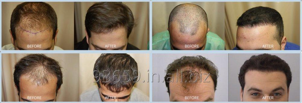 Order Hair Fall Treatment