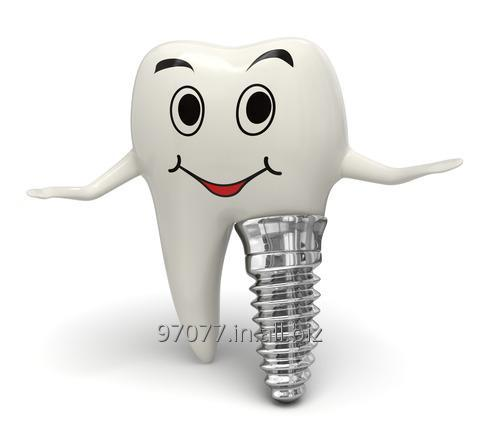Order Dental Implant