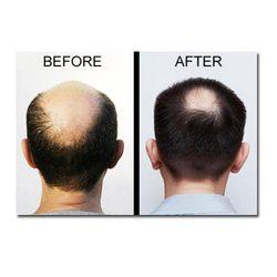 Order Hair Transplant