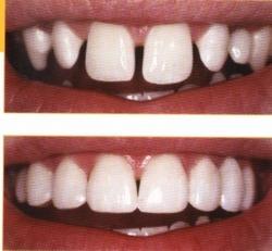 Order Bleaching & tooth veneer