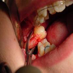 Order Tooth extraction & third molar surgeries