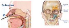 Septoplasty, Polypectomy.