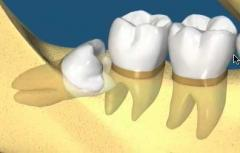 Impacted Teeth Removal