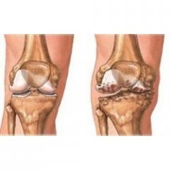 Arthritis Treatment Services