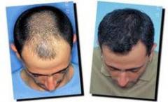 Что такое графт пересадка волос на голове