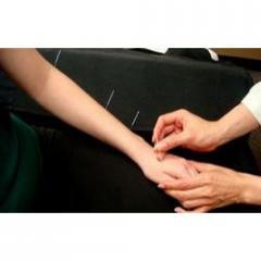 Acupunture treatment for Leucoderma