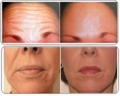 Filler and botox for ageing skin