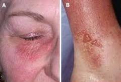 Skin allergy solution