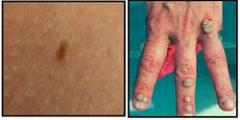 Skin tag, wart and moles removal