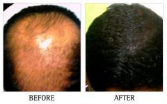 Hair Loss Clinic in Bangalore