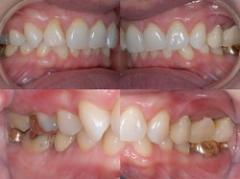 Complete & partial fixed dentures (with an