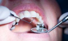 Preventive treatment for dental caries